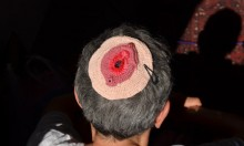 Vagina Yarmulkes Are A Thing