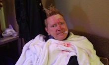 PiL's John Lydon Hit By Bottle At Concert, Bleeds, Continues Show