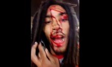 Rapper Gets Shot In Head, Immediately Films Video For Facebook