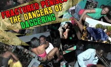 Fractured Penises - The Dangers of Daggering