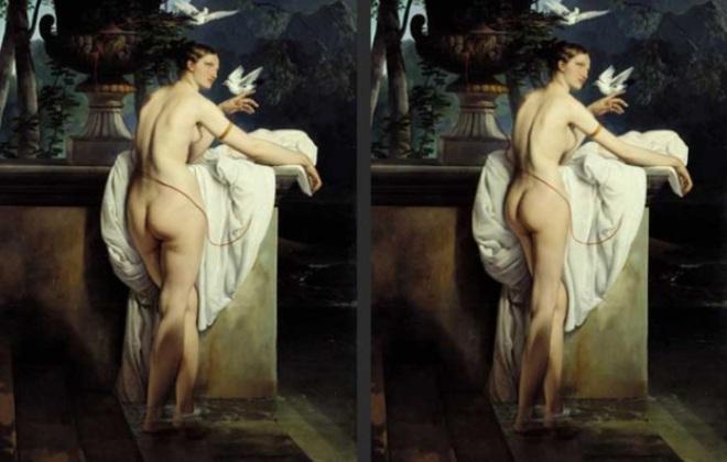 Venus De Lipo